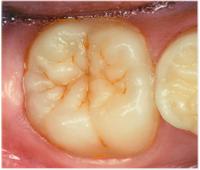 口の中の写真 - 歯の溝がザラザラしていました。色素も沈着しやすくなります。