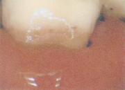露出した歯根にCRを盛った状態