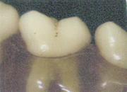 正常な歯肉の位置