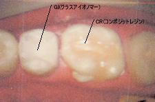 小児の虫歯治療について治療後