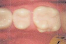 小児の虫歯治療について治療前