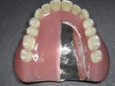 金属床義歯について