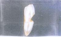歯頸部の欠損