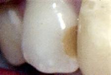 歯の1/4以下