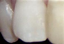 前歯に最適