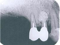 歯根尖(端)切除術の症例