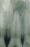 根の先(顎骨)に膿の袋があり、血や膿が止まらない場合