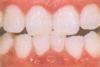 見える歯石の除去