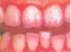虫歯チェック、フッ素塗布1