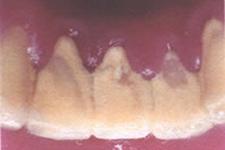 なぜ歯周病になるのでしょうか?